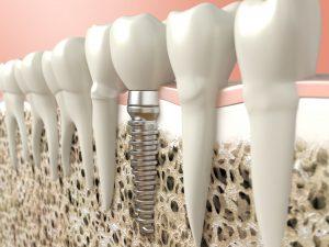 illustration of dental implant