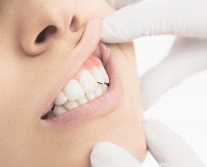 teeth oral exam gums
