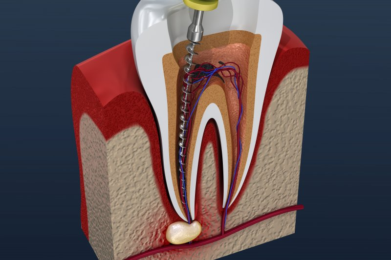 a digital image cross-section of a tooth undergoing a root canal in Kernersville
